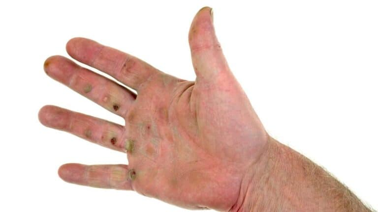 how to prevent blisters on hands from golf
